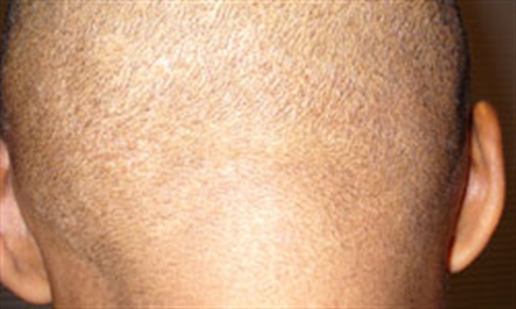 Dermacare  Dermacare - A complete skin care centre
